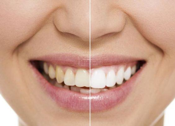 aclaramiento dental1