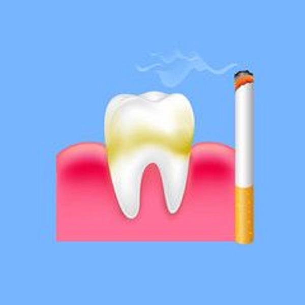 aclaramiento para la estética dental