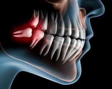 cordales o terceros molares destacada