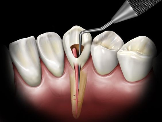 qué es endodoncia dental
