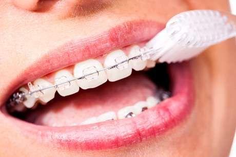 recomendaciones pacientes de ortodoncia
